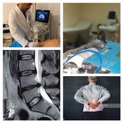Ernia lombosacrale trattata con infiltrazioni paravertebrali ecoguidate, patologia risoltasi in 8 sedute.