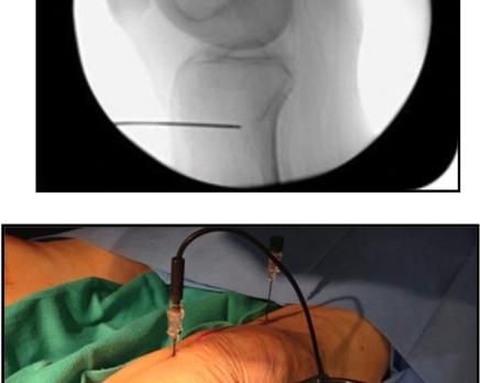 Artrosi di Ginocchio e Radiofrequenza